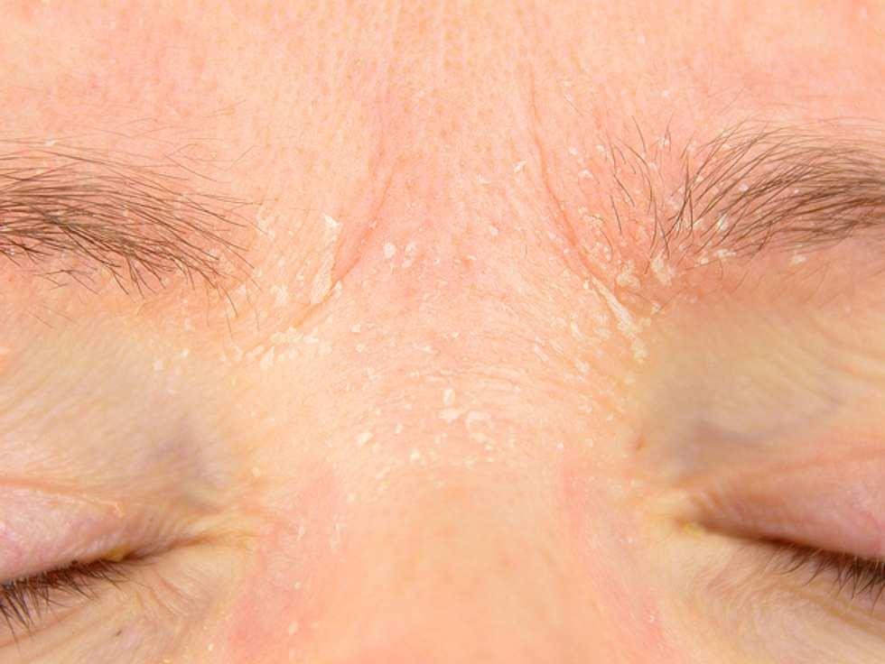 Körper am trockene flecken Hautausschlag •