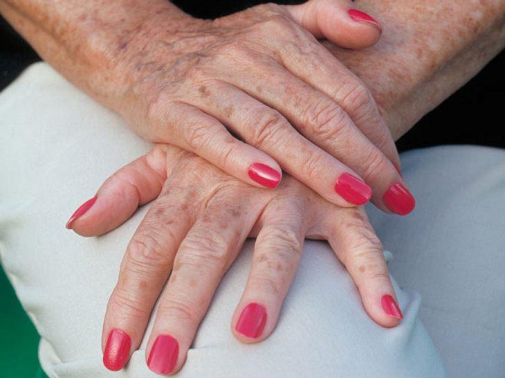 Hausmittel gegen Altersflecken