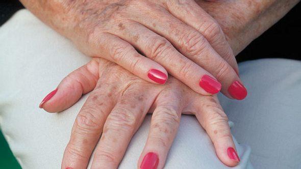Frauenhände mit Altersflecken. - Foto: FSTOPLIGHT / iStock
