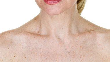 Altersflecken und Co.: Wann Hautveränderungen gefährlich sind - Foto: John Sommer / iStock