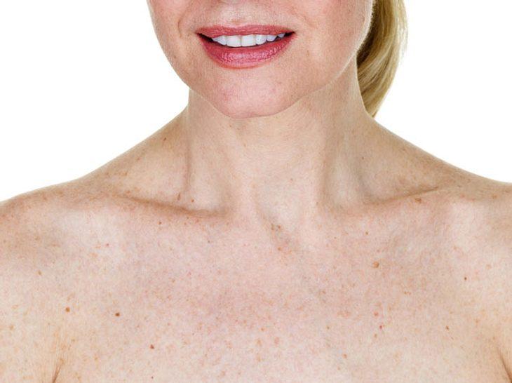 Altersflecken und Co.: Wann Hautveränderungen gefährlich sind