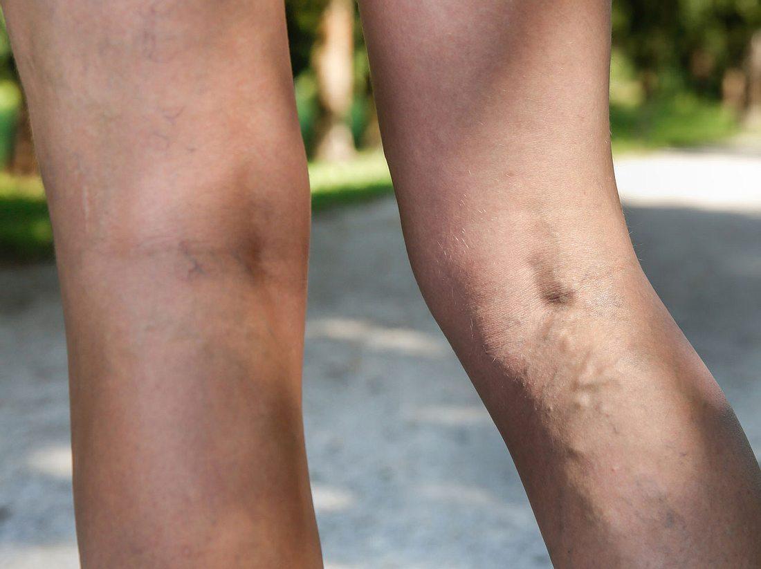 Arteriosklerose: Der Infarkt im Bein