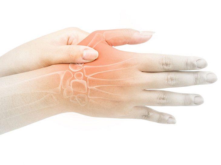 Arthrose im Daumensattelgelenk: Die neue Therapie