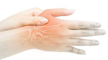 Arthrose im Daumensattelgelenk: Die neue Therapie - Foto: horillaz/ iStock