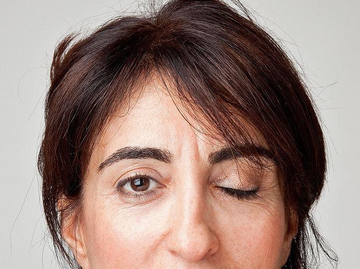 Ein ständiges Augenzucken kann auf einen Hemispasmus facialis hindeuten.