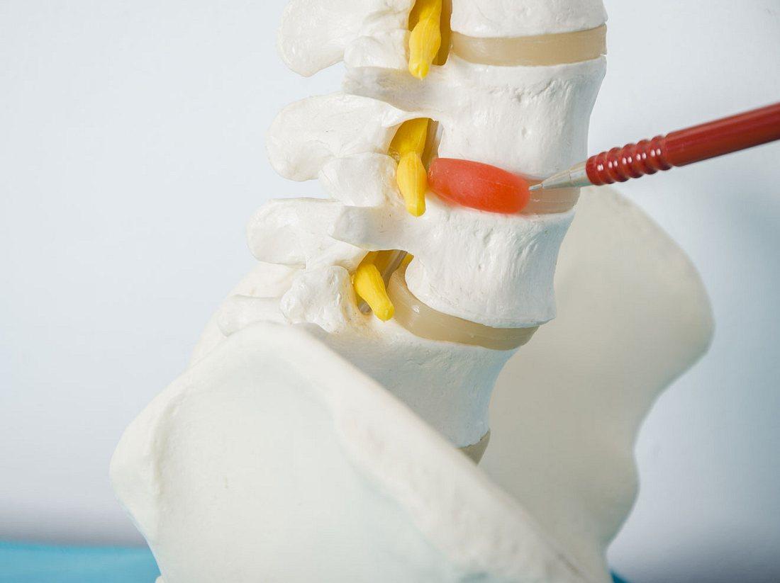 Gel-Implantat für kaputte Bandscheiben