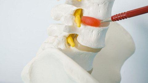 Gel-Implantat für kaputte Bandscheiben - Foto: Sunlight19 / iStock