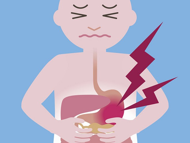Bauchschmerzen vom Essen lassen sich vorbeugen.