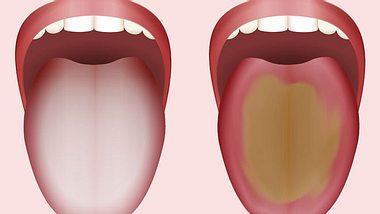 Belegte Zunge: Was die Farbe des Zungenbelags bedeutet
