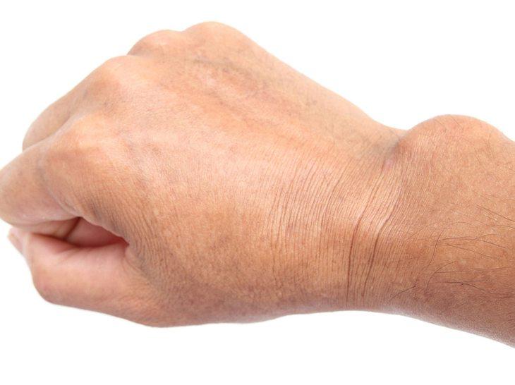 Schmerzen im Handgelenk — viele Diagnosen, eine Ursache?