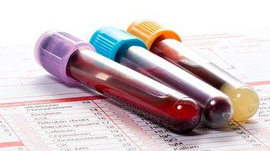 Blutbild richtig deuten: Was ein Tropfen Blut verrät