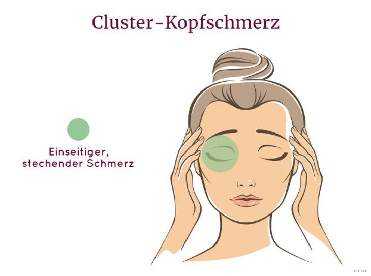 Cluster-Kopfschmerz äußert sich durch einseitigen Schmerz hinter dem Auge.