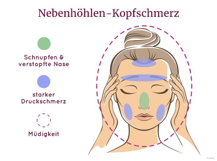 Sinus-Kopfschmerz, auch Nebenhöhlen-Kopfschmerz genannt.