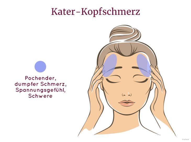 Ebenfalls nicht angenehm: Kater-Kopfschmerz