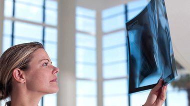 COPD mit Ventilen therapieren