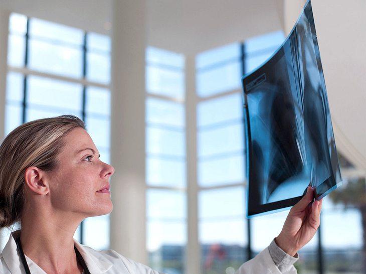 Für die Therapie von COPD, einer Erkrankung der Lunge, gibt es jetzt neue Hoffnung.