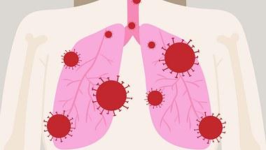 Die Symptome des Coronavirus lassen sich nur schwer von einer Grippe oder Erkältung unterscheiden.