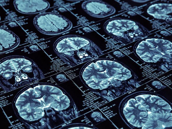 Forscher finden neue Substanz für Demenz-Therapie