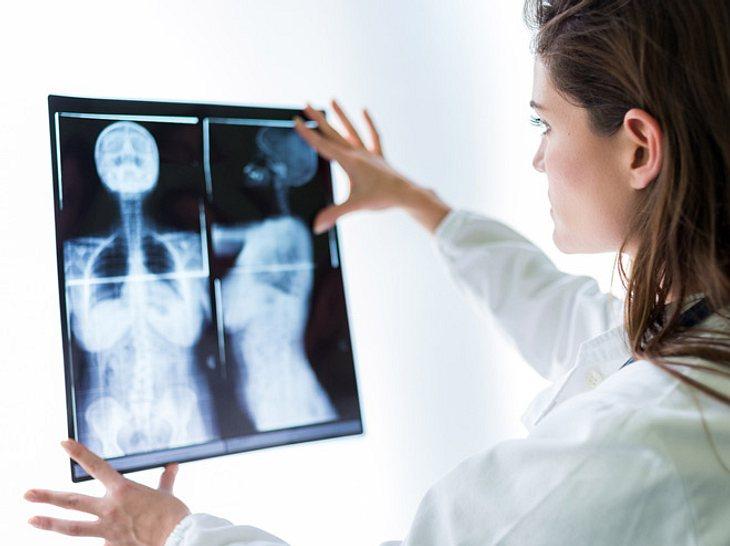 Neuer Durchbruch bei der Brustkrebs-Therapie?