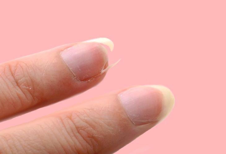 Eingerissener Nagel So Können Sie Fingernägel Schnell Wieder Kitten