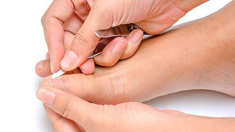 Ein eingewachsener Zehennagel ist schmerzhaft und kann eine Entzündung hervorrufen. - Foto: Ouan_Ton / iStock