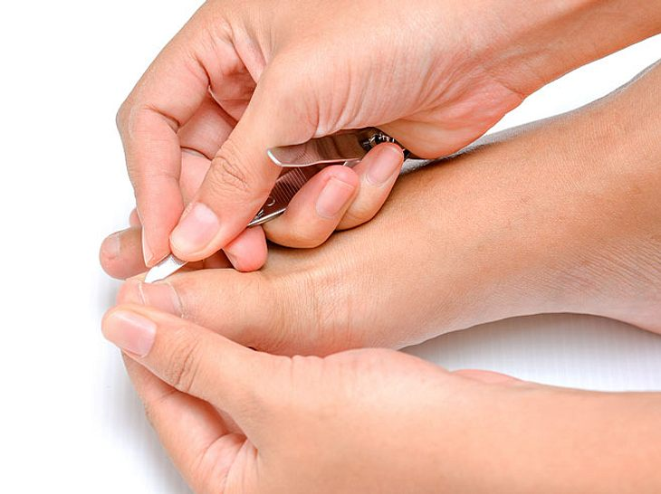 Ein eingewachsener Zehennagel ist schmerzhaft und kann eine Entzündung hervorrufen.