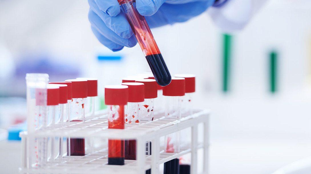 Entzündungswerte im Blut: Das sollten Sie wissen