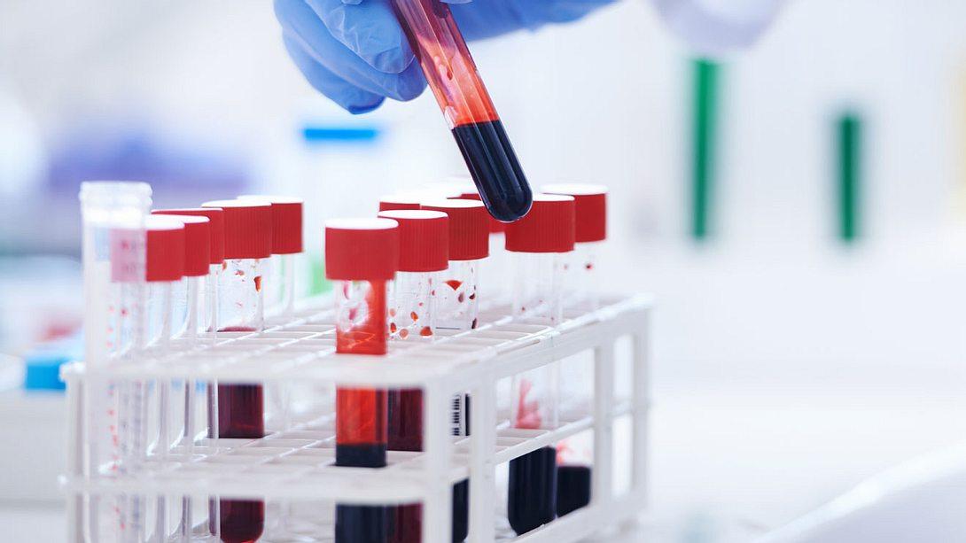 Die Entzündungswerte im Blut helfen dem Arzt bei der Diagnose - Foto: PeopleImages / iStock