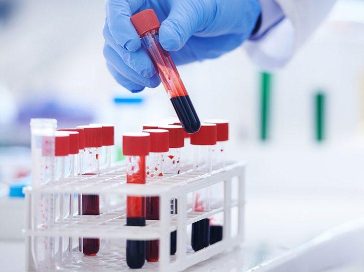 Die Entzündungswerte im Blut helfen dem Arzt bei der Diagnose