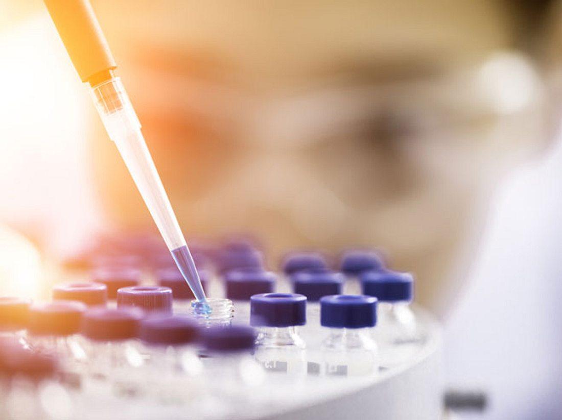 Gallengangkrebs: Neue Behandlungsmethode entdeckt