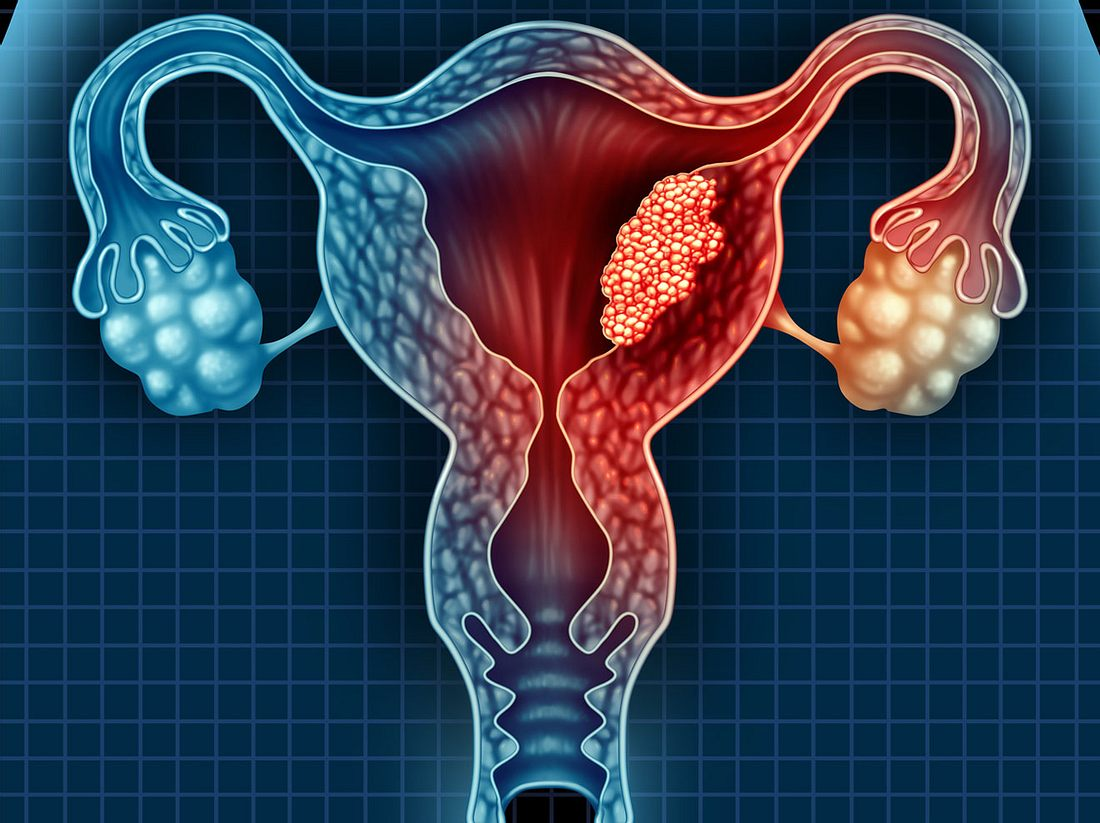 Gebärmutterkrebs erkennen und behandeln.