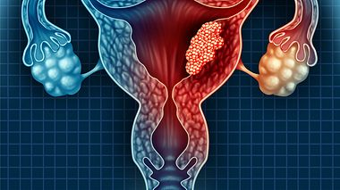 Gebärmutterkrebs erkennen
