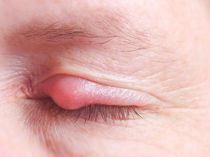 Gerstenkorn am Auge: Symptome und Behandlung