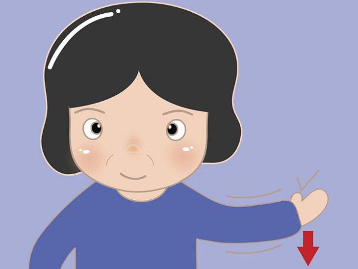 Bei einem Hirnschlag kann der Betroffene nicht beide Arme gleichzeitig heben.