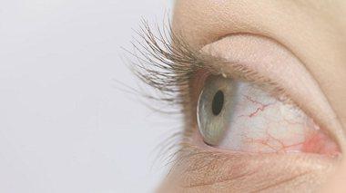 Welche Symptome auf eine Hornhautentzündung hindeuten können.  - Foto: stock_colors / iStock