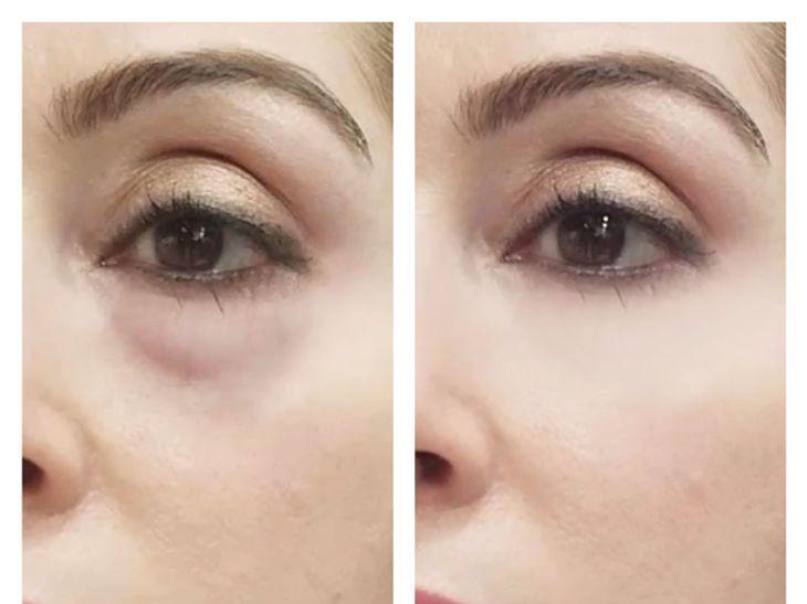 Vorher Nachher Vitayes Augencreme