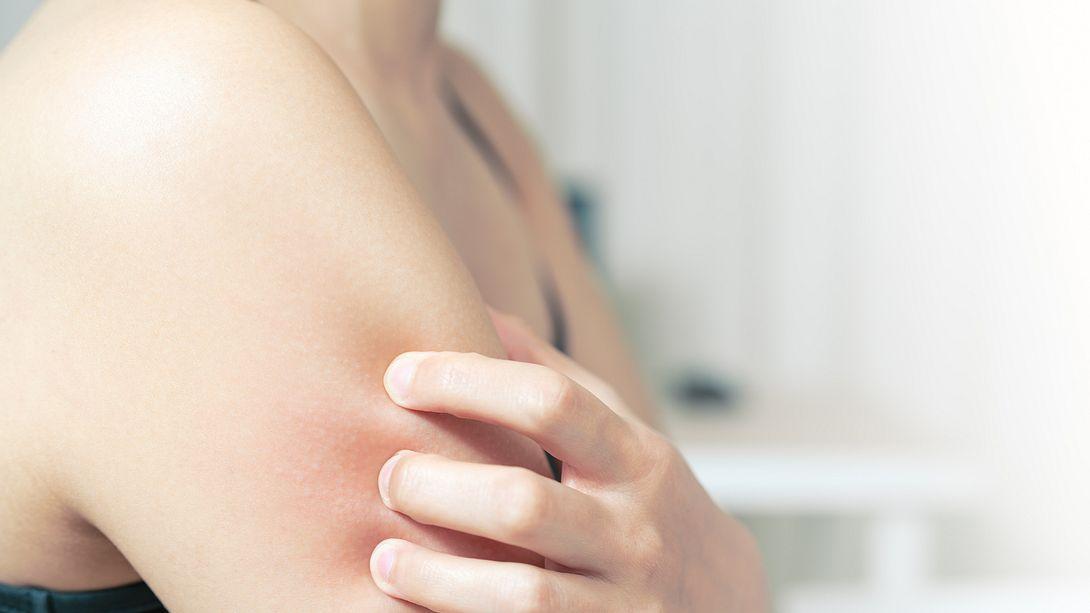 Juckende Haut: Schnelle Hilfe bei Sonnenbrand, Stichen und Co.