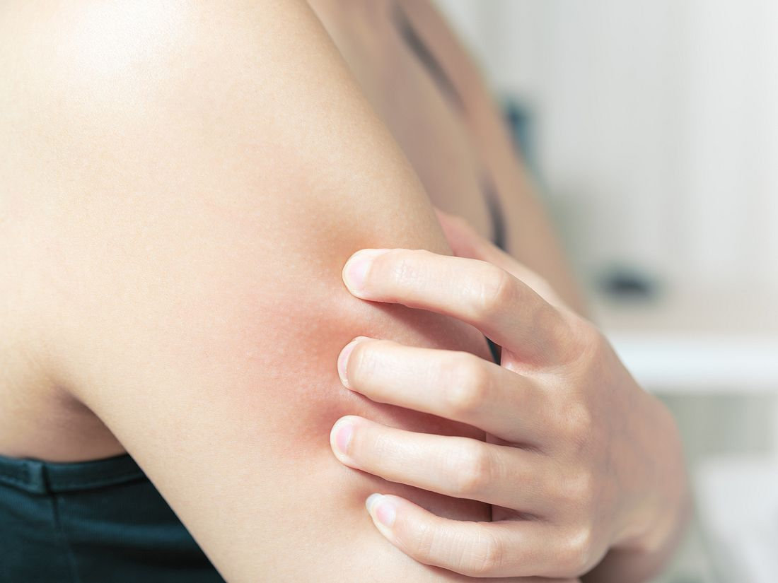 Wie Sie Ihrer juckenden Haut schnell helfen.