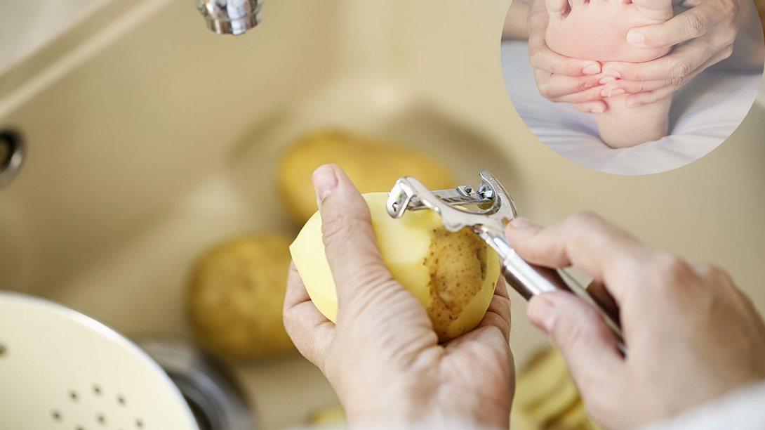 Kartoffeln gegen Hornhaut
