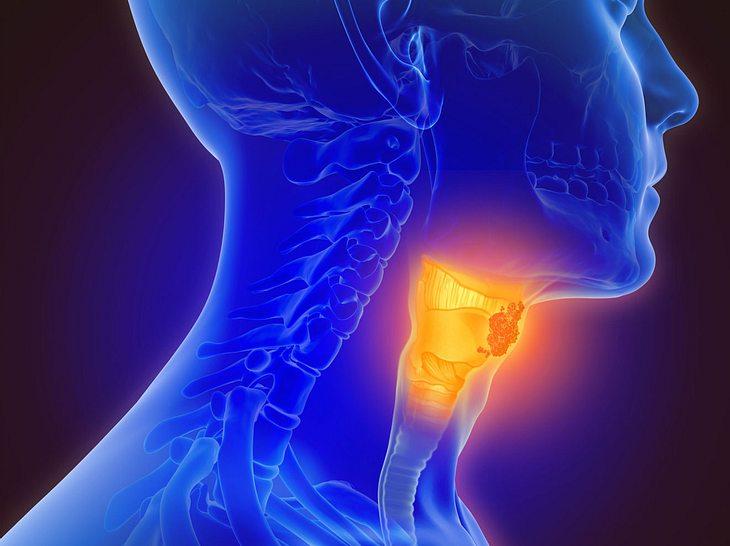 Kehlkopfkrebs erkennen und behandeln