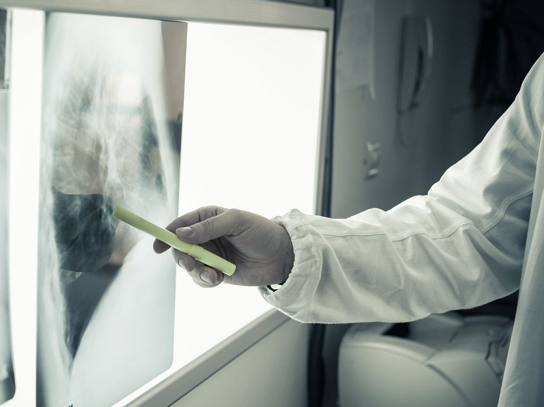 Der Stift soll Tumore schneller finden