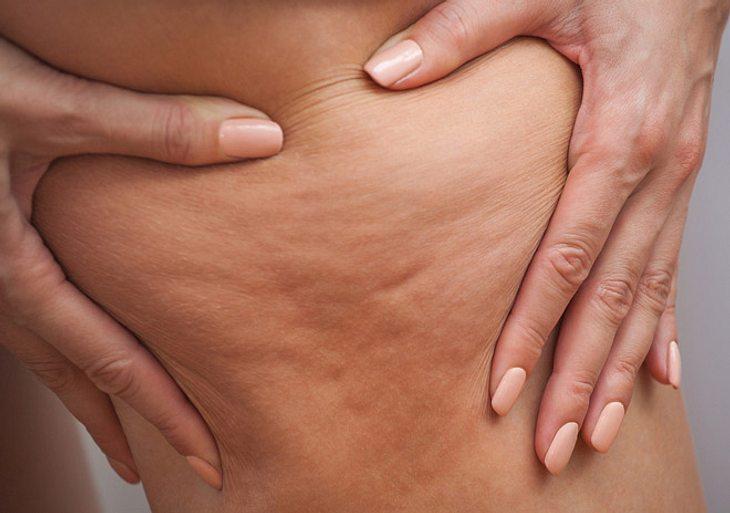 Lipödem: Symptome, Diagnose und Behandlung.