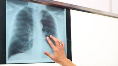 Auf die Gesundheit der Lunge achten. - Foto: jovanjaric / iStock