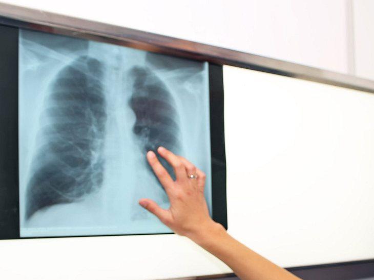 Auf die Gesundheit der Lunge achten.