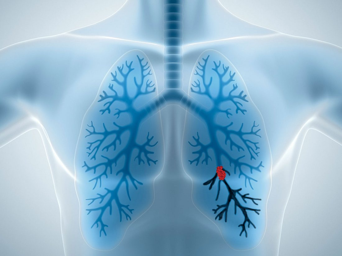 Lungenembolie erkennen und behandeln