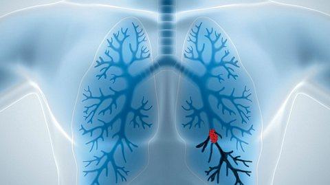 Was ist eine Lungenembolie?