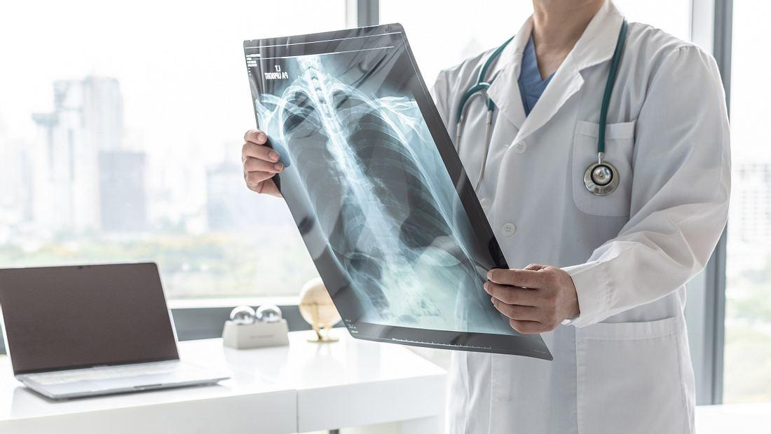 Arzt betrachtet Röntgenaufnahmen der Lungen.