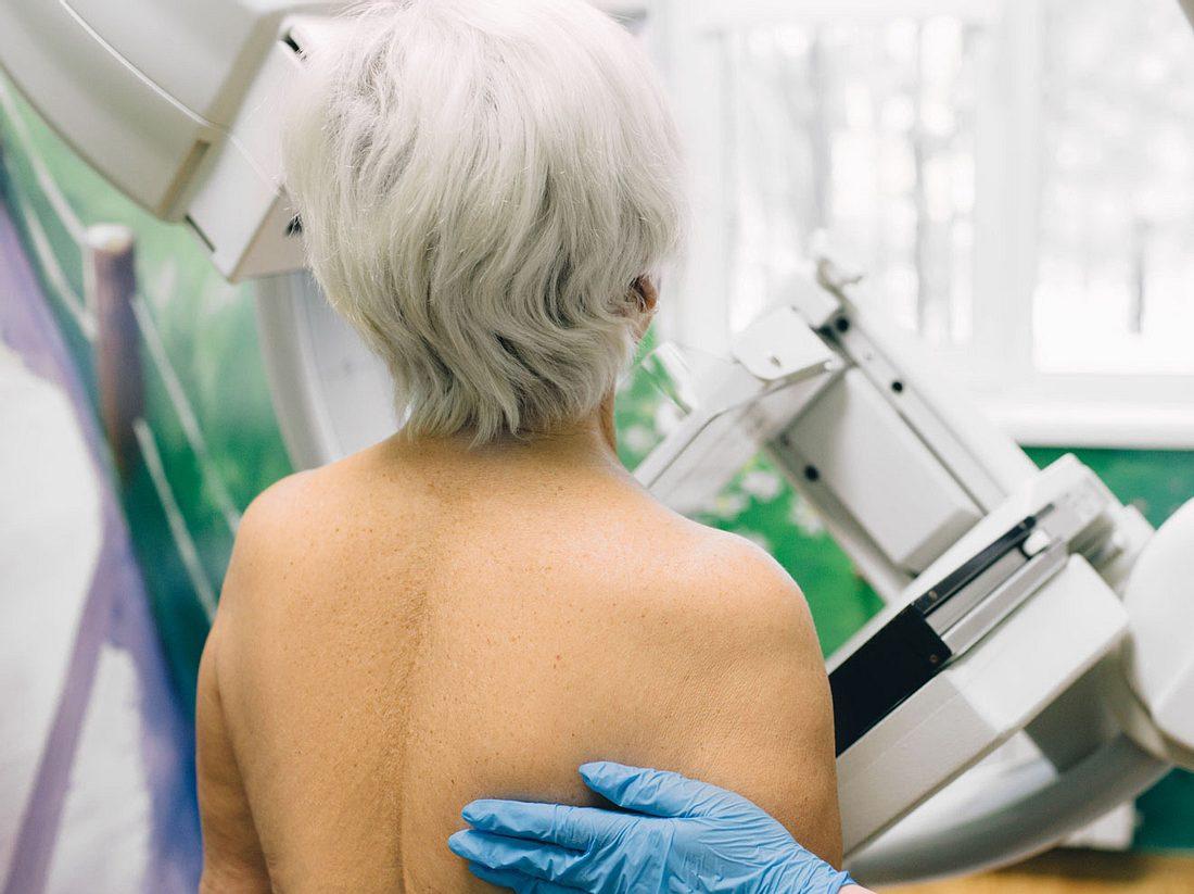 Brustkrebsvorsorge: Ab wann Frauen zum Mammographie-Screening gehen sollten.
