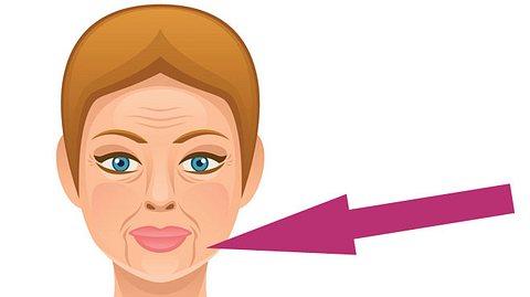 Tipps gegen den Marionetten-Mund