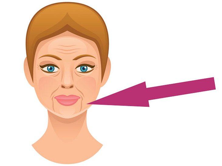 Das Können Sie Gegen Den Marionetten Mund Tun Liebenswert